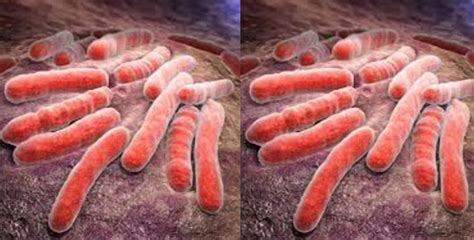 Top 10 Most Dangerous Germs In The World 2019, Most Deadly