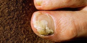 Are Toe Thumbs Normal? What to Know If You Have Clubbed Thumbs