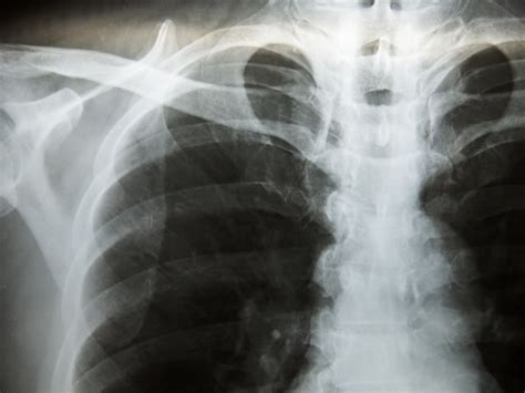 Update to Pulmonary Tuberculosis Screening Recommendations